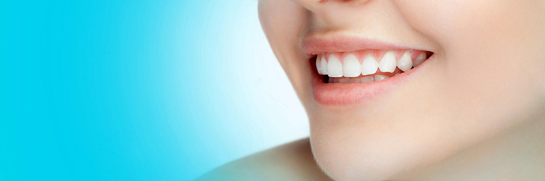 دندانپزشکی دکتر فرشاد نیک نژاد Smile design